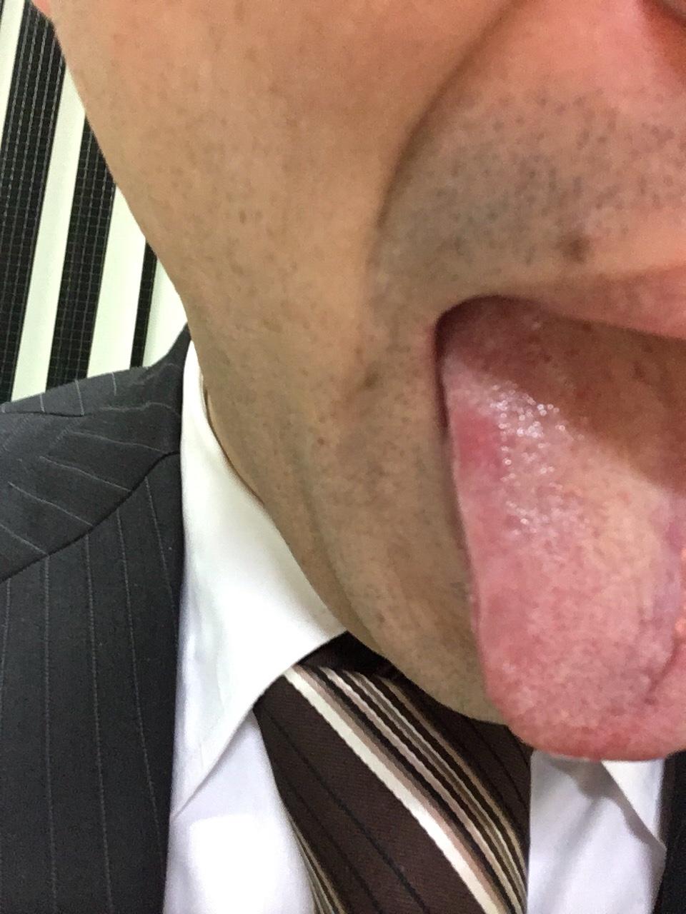 img 9427 - 胃食道逆流症が喉の不調の原因?
